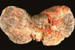 Печень с циррозом.