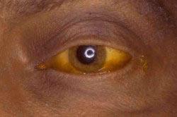 Пожелтение кожи и роговицы глаз