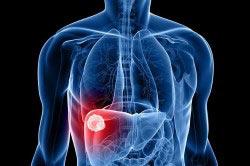 Цирроз печени - одно из сопровождающих заболеваний при алкоголизме