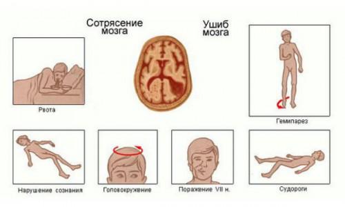 Симптомы при сотрясения мозга