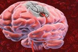 Разрушение клеток мозга