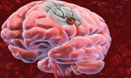 Влияние алкогольной энцефалопатии на мозг