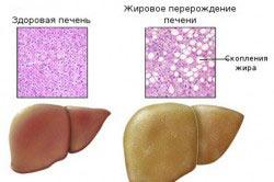 Стеатоз - жировое перерождение печени