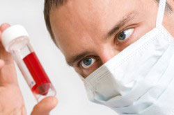 Проба крови на анализ