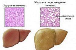 Стеатоз-перерождение клеток печени