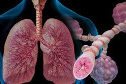 Запрет на прием Алкозельцера при бронхиальной астме