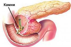 Отечная форма (интерстициальный панкреатит)