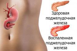 Признаки воспаления поджелудочной железы