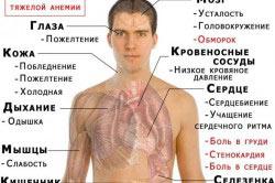 Симптомы анемии при продолжительном приеме препарата