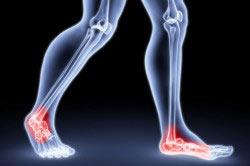 Детралекс для лечения тяжести в ногах