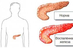 Развитие воспаления поджелудочной железы при использовании Метипреда