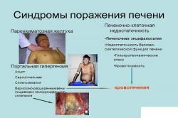 Синдромы поражения печени