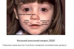 Внешний вид ребенка с алкогольным фетальным синдромом