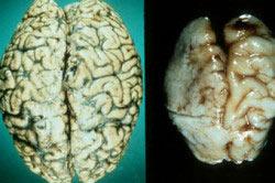Во что алкоголь превращает мозг человека