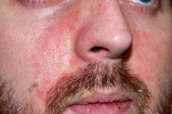 Красные пятна на теле после алкоголя: причины и лечение