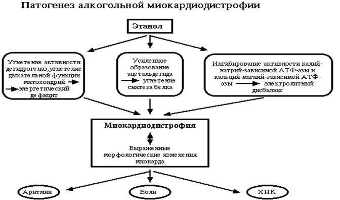 Алкогольная миокардиодистрофия