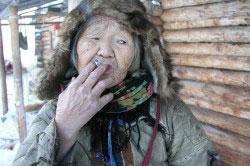 Жительница Чукотки после длительного периода употребления алкоголя