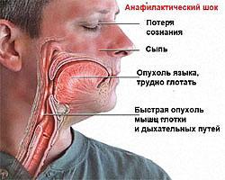 Аанафилактический шок при сильной аллергии