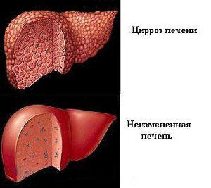 Какая мера профилактики гепатита и спида наиболее распространена во врачебной практике