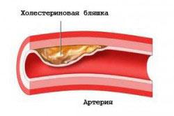 Холестерин при употреблении алкоголя