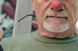 Красный нос после длительного употребления алкоголя