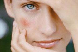 Красные пятна на лице из-за аллергии к спиртному
