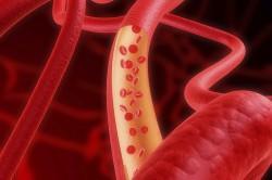 Влияние на кровеносную систему