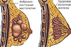 Здоровая молочная железа и мастопатия