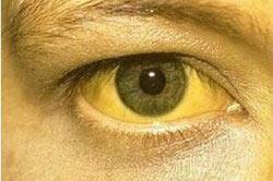 Пожелтение кожи и глаз