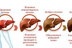 Лечение алкогольного гепатита при помощи препарата Эссливер Форте