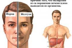 Цирроз печени от алкоголя