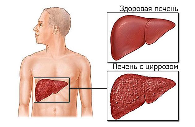 убивает ли алкоголь паразитов в организме человека