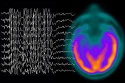 Расстройство сознания при эпилепсии