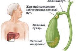 Гепатит с лечение дженериками форум