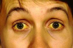 Желтое лицо и желтые глазные яблоки - признаки алкогольной желтухи